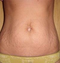 При мастопатии — Студопедия