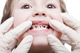 Опасные последствия детского кариеса и способы его лечения